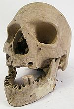 HUMAN SKULL.  Medical specimen of aged adult and complete with mandible.  (Note:
