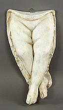 Plaster Cast of Child's Legs