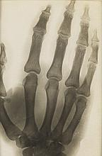 (X-RAYS) A selection of 8 diverse x-rays of the human body, including 6 of French origin and 2 of English.