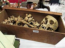 An Adam Roully half skeleton in case