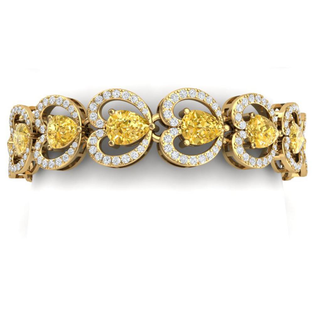 29.14 ctw Canary Citrine & VS Diamond Bracelet 18K Yellow Gold - REF-594K5W - SKU:38699