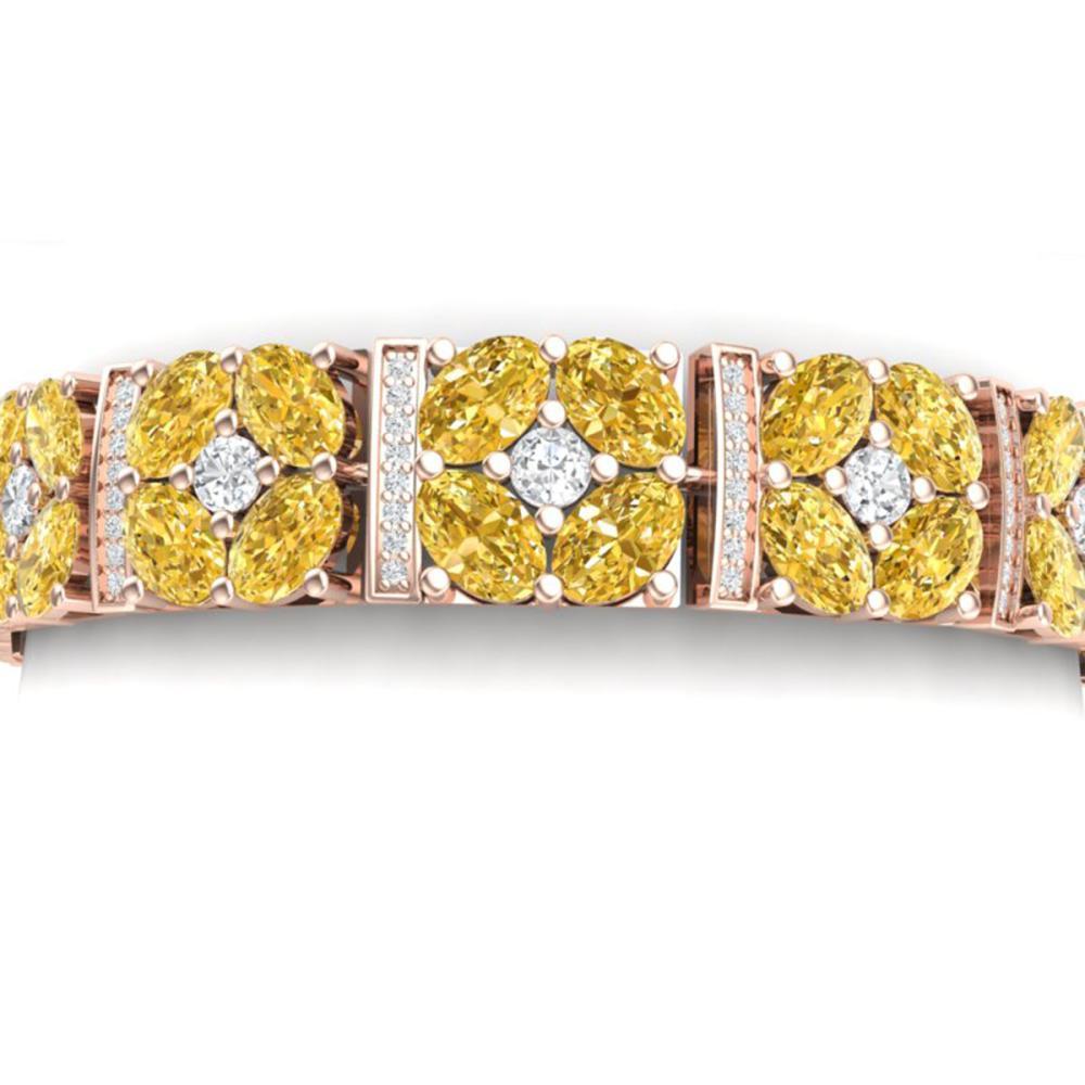 28.95 ctw Canary Citrine & VS Diamond Bracelet 18K Rose Gold - REF-636Y4X - SKU:39028