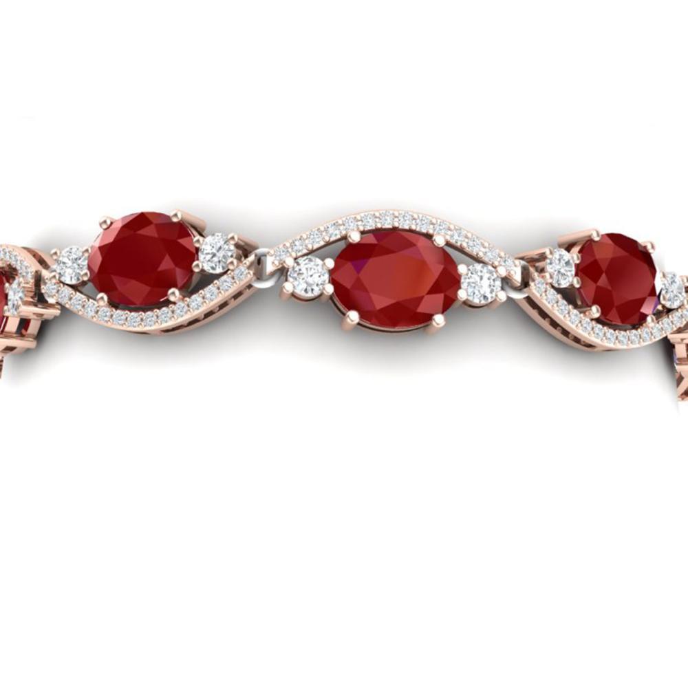 22.15 ctw Ruby & VS Diamond Bracelet 18K Rose Gold - REF-418H2M - SKU:38962