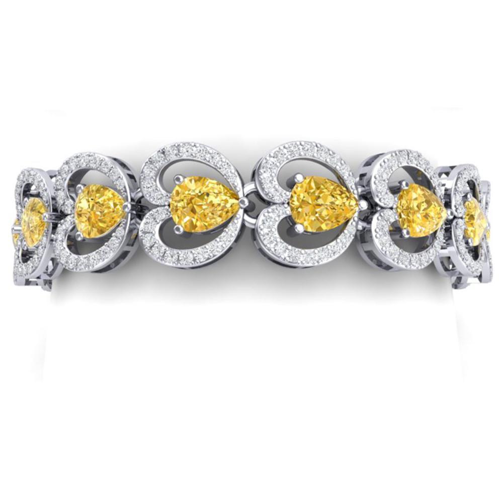 29.14 ctw Canary Citrine & VS Diamond Bracelet 18K White Gold - REF-594F5N - SKU:38697