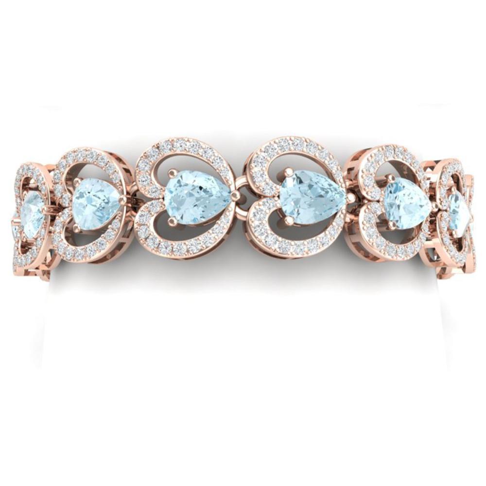 33.43 ctw Sky Topaz & VS Diamond Bracelet 18K Rose Gold - REF-594A5V - SKU:38695