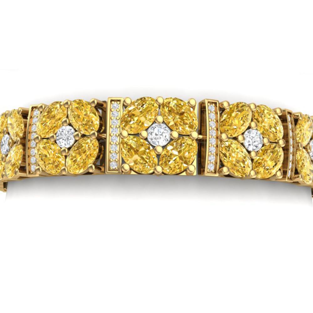 28.95 ctw Canary Citrine & VS Diamond Bracelet 18K Yellow Gold - REF-636Y4X - SKU:39029