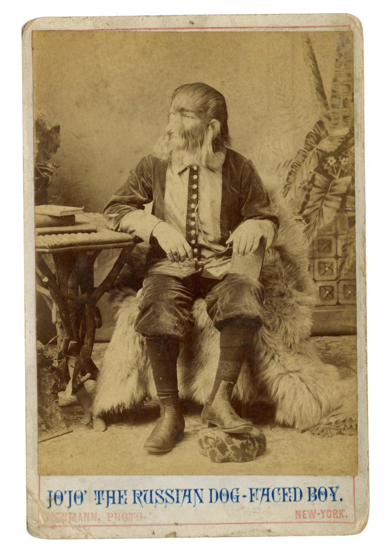 THE DOG-FACED BOY [CABINET CARD]