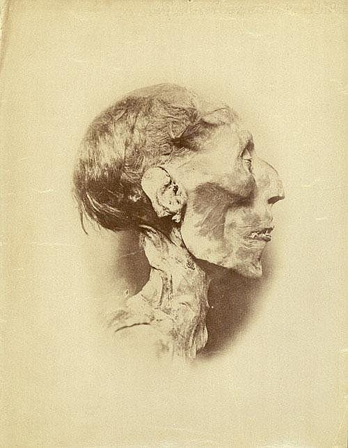 Brugsch, ╔ mile Mummies of Ramses II and