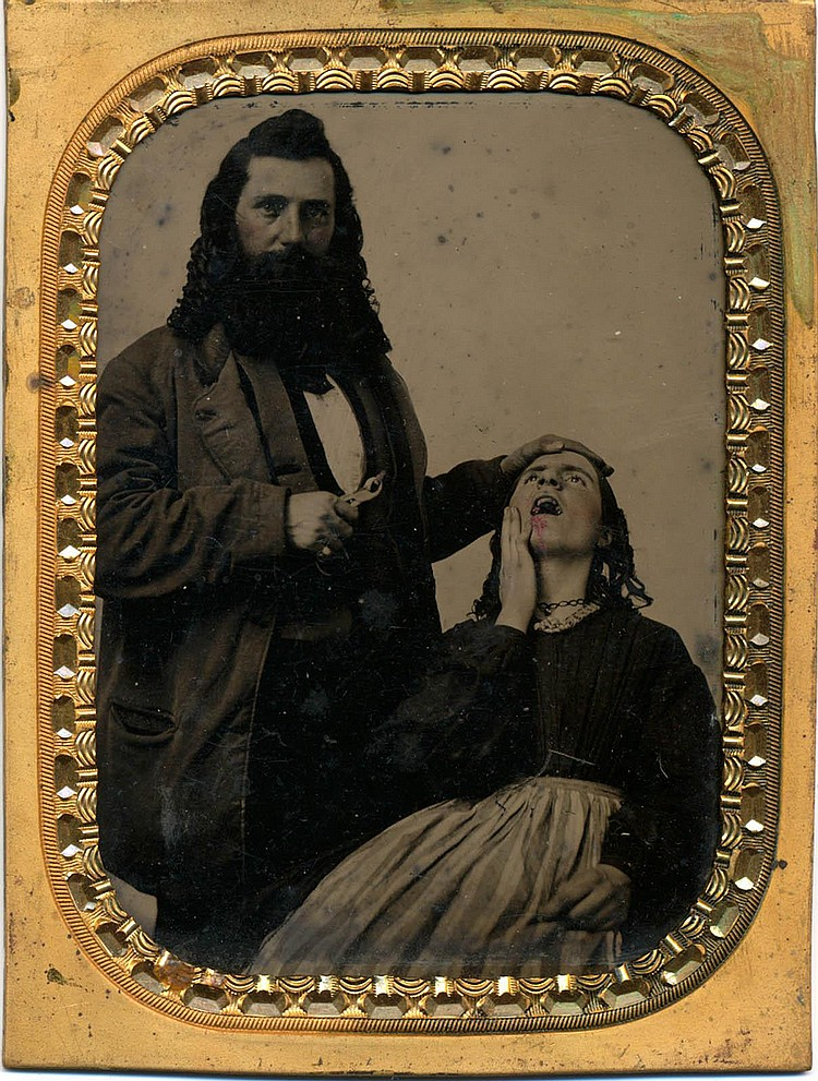 OUCH! DENTIST PULLED TOOTH. Tintype with color