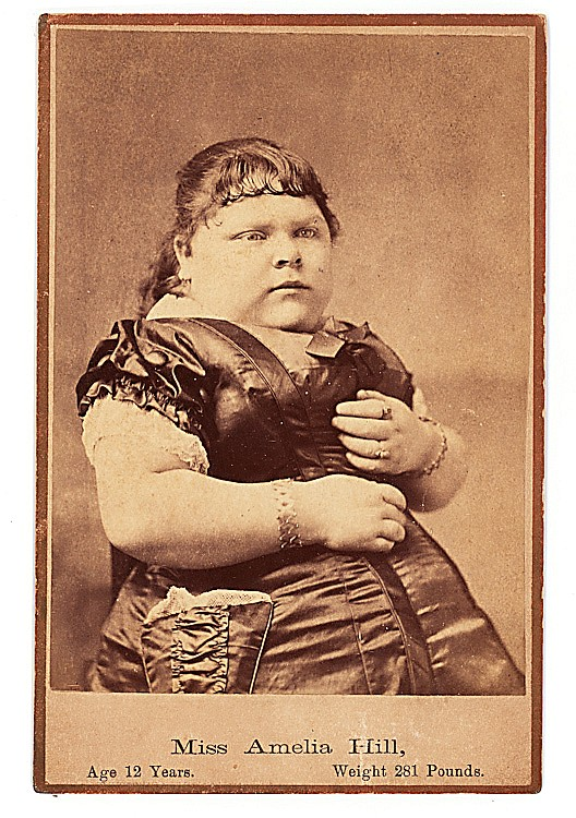 "Fat girl Amelia Hill. Here she is at age 12, already a star in the ""freaks"" circuit, weighing 381 pounds."