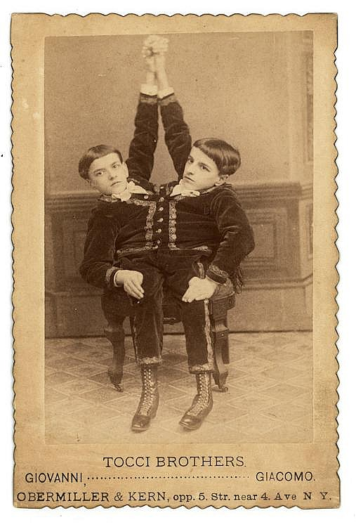 Tocci Brothers, Giovanni and Giacomo, conjoined Siamese Twins with two heads, each with one leg. Two cabinet cards.