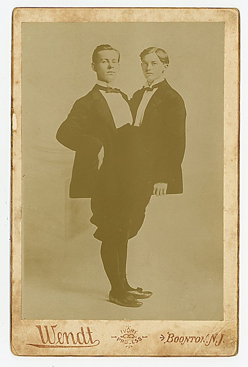 Conjoined twins in formal dress, by Wendt.