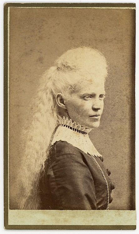 An albino [Circassian] woman with long blond hair.