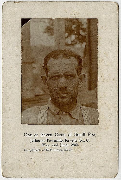 A smallpox patient.