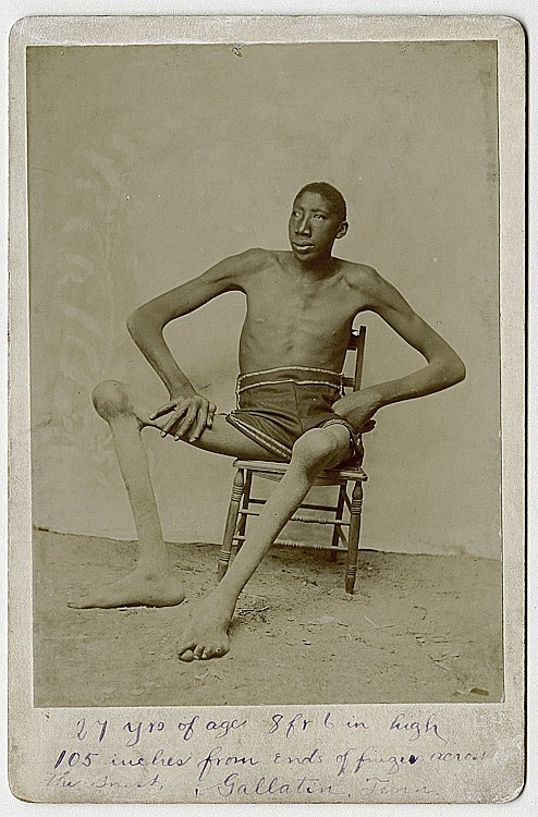A tall black man with bony knees.
