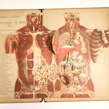 1880 Anatomical Fold-Out:  Atlas of The Human Body, Large Folio by Witkowski