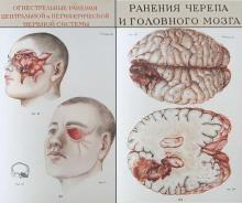 1948 vintage Russian USSR hardcover medical book – Atlas of scull & brain firearm wounds Rare