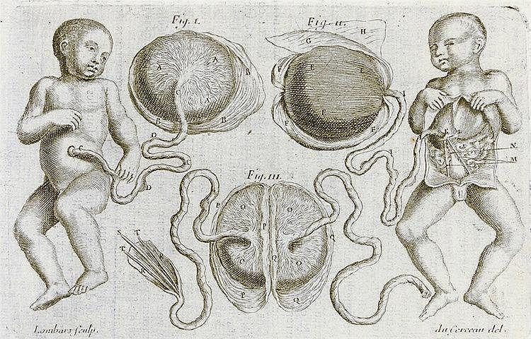 Medizin - Gynäkologie - - Mauriceau, Francois. Traité des maladies des femm