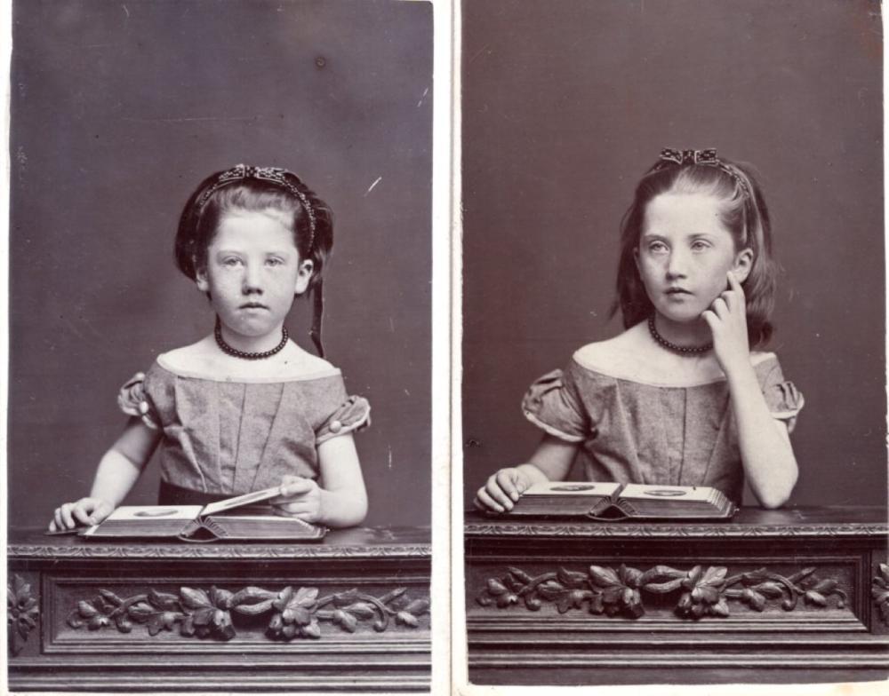 Freckled Irish sisters, 1870 CDVs
