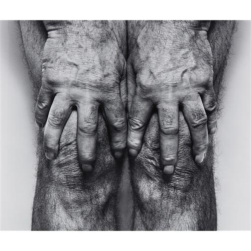 JOHN COPLANS - Self-Portrait (Hands spread on knees), 1985