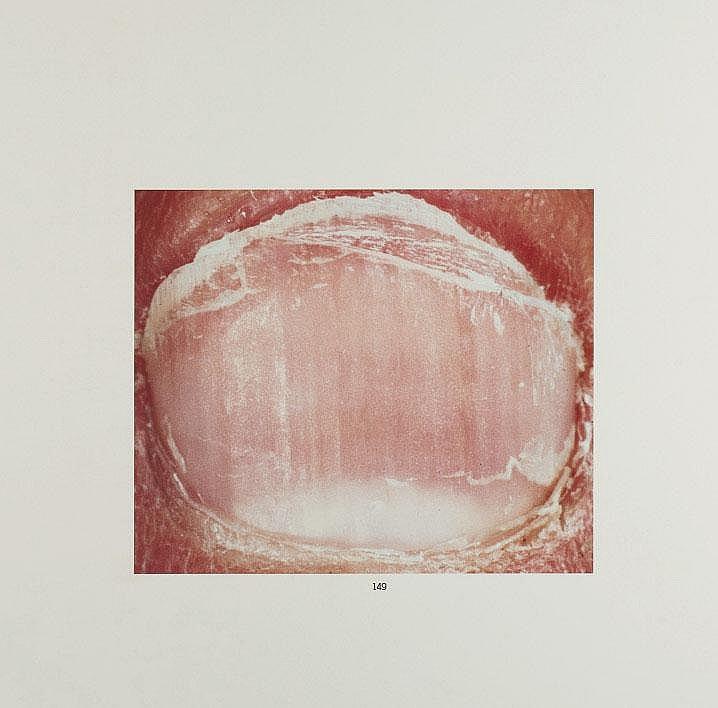 TOSANI, PATRICK (1954)Ongle n° 19, 1990. Tirage