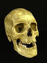 Real Human Medical Skull