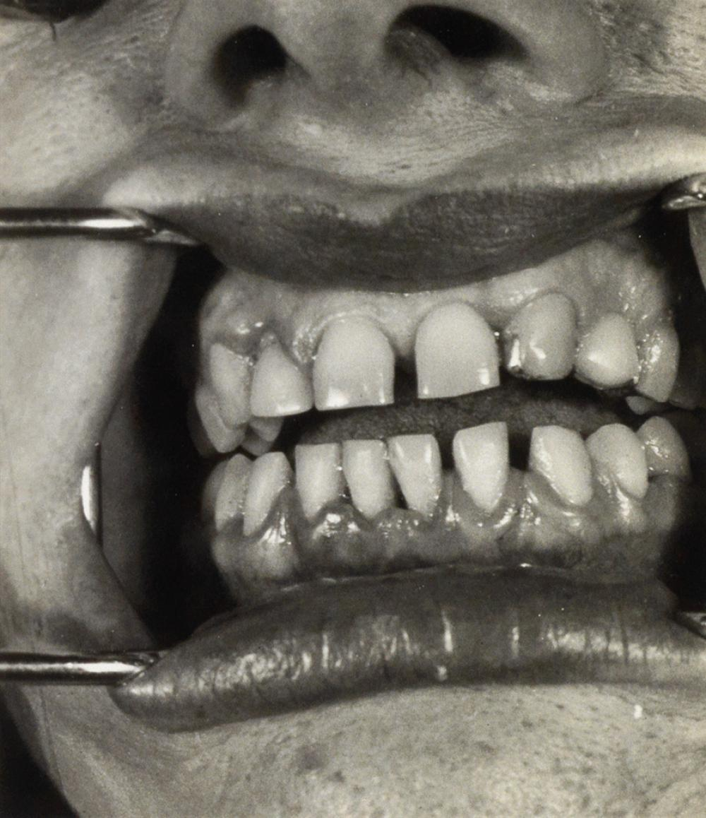 (DENTISTRY) A large archive of approximately 335 photographs of teeth.