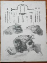 rare antique French medical surgical trepanation engraving