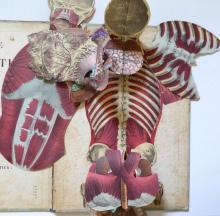 Antique Anatomy ICONOCLASTIQUE WITKOWSKI, 1875