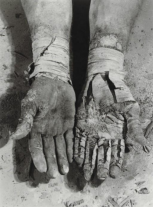 Die Befreiung der Finger, from Errinnerungsspur , 1977-1979