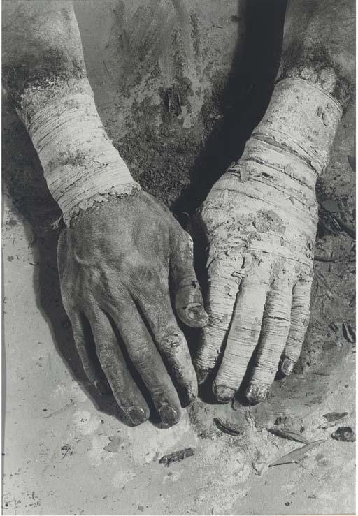 DIETER APPELT (B.1935)