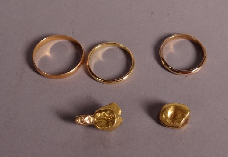 18k gold jewelry: 3 alliances and 2 gold teeth